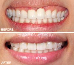 BruxZir (2012 PPL) – The Dental Advisor